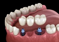 Animateddental implant supported fixed bridge placement