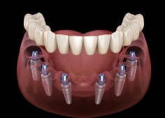 Animated dental implant supported denture placement
