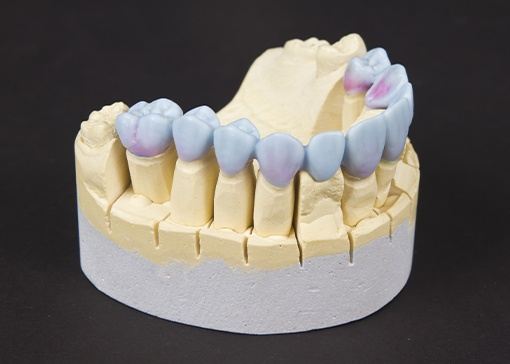 Wax up model of smile with dental restorations